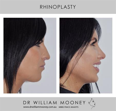 Rhinoplasty Surgery The Recovery